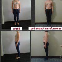 Klientka Agnieszka – wzmocnienia ciała, poprawa postawy ciała, zniwelowanie problemu NT