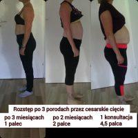 Klientka Kasia- rozstęp mięśnia prostego i  redukcja wagi -4kg po porodzie