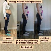 Rozstęp mięśnia prostego brzucha po porodzie – Marta