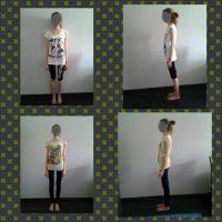 Monika – osteoporoza
