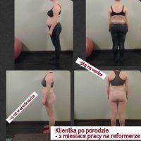 Klientka Patrycja po porodzie – rozstęp mięśnia prostego, bóle kręgosłupa