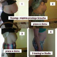 Klientka Kinga- rozstęp mięśnia prostego brzucha po ciąży bliźniaczej
