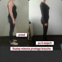 Klientka Madzia – rozstęp mięśnia prostego brzucha po porodzie, utrata wagi