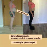 Rozstęp mięśnia prostego brzucha – Agnieszka